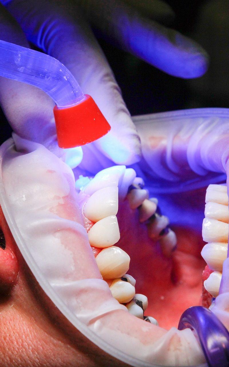Zła dieta odżywiania się to większe deficyty w zębach a dodatkowo ich utratę